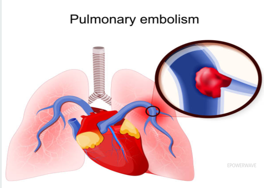 What is Pulmonary Embolism