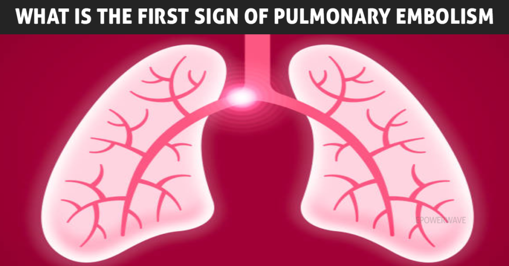 What is the First Sign of Pulmonary Embolism