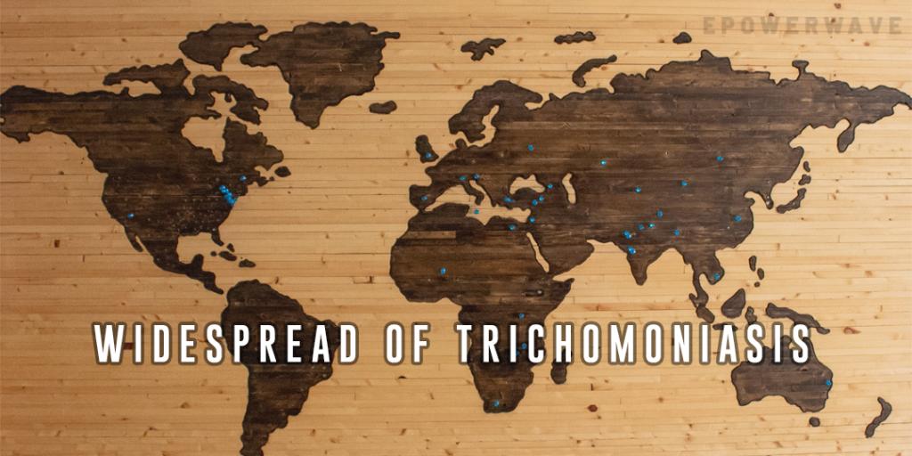 trichomoniasis?